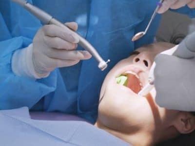 deep cleaning teeth auburn