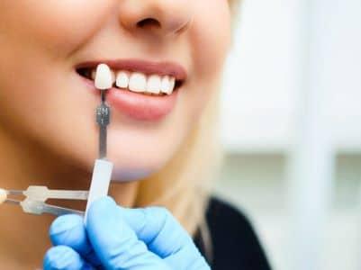 dental implants lea hill
